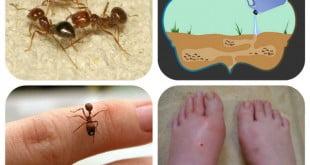 الحساسية من النمل