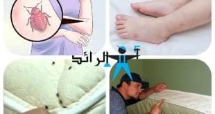 علاج لدغة البق